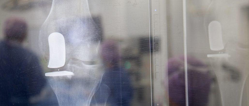 Röntgenfoto van het kniegewricht