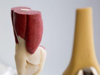 Feitjes over de knie, aandoeningen